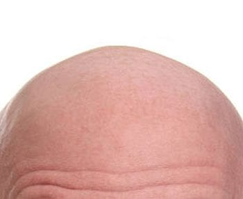 the top of a bald man's head
