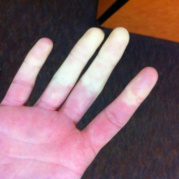 a hand where part of the fingers are white